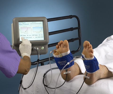 Customer Project: Peripheral Artery Disease Measurement System